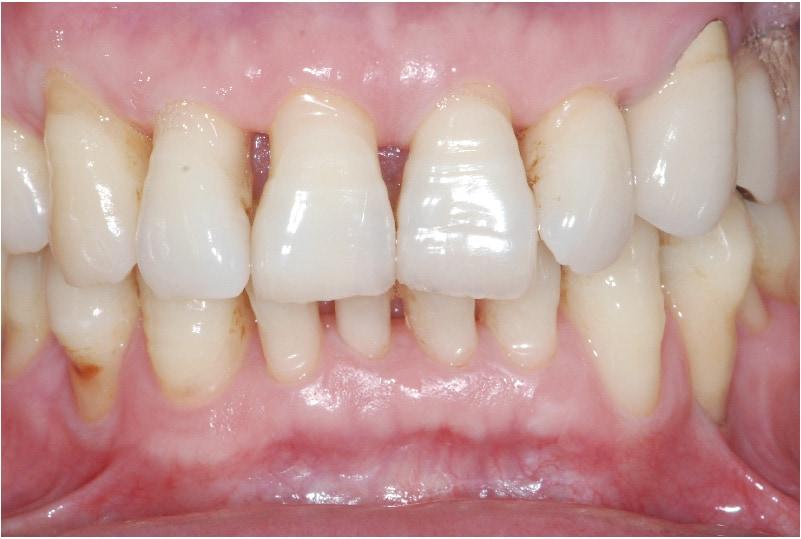 牙周再生手術-術後-牙周狀況穩定-牙齦不再浮腫