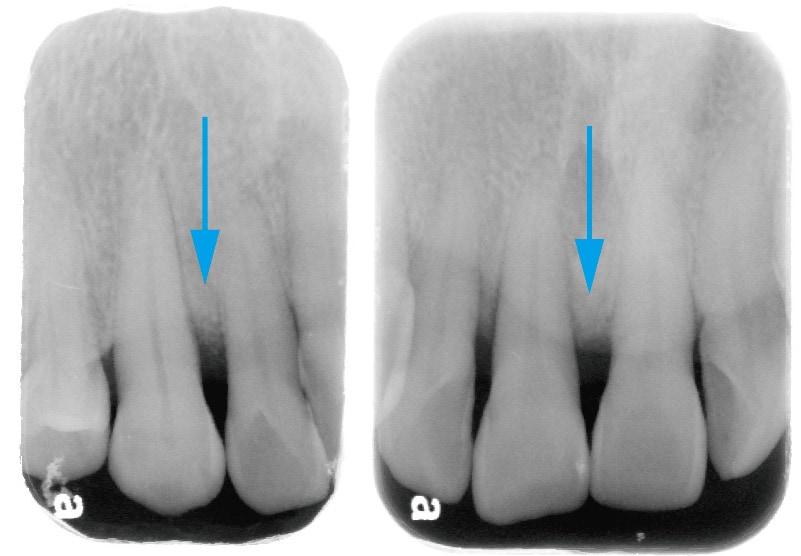 牙周再生手術-術後-X光片-骨頭再生處
