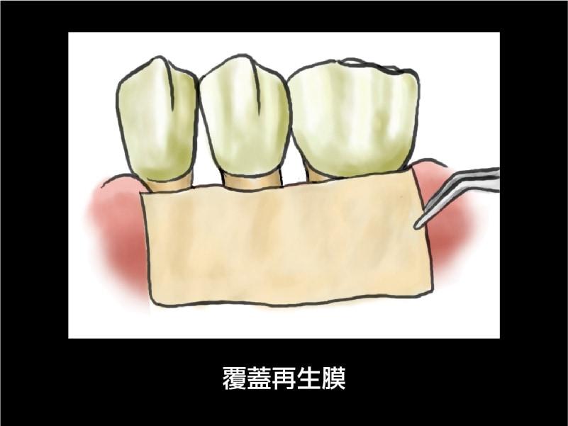 牙周再生手術-覆蓋再生膜-牙周病手術-葉立維醫師-桃園牙周病