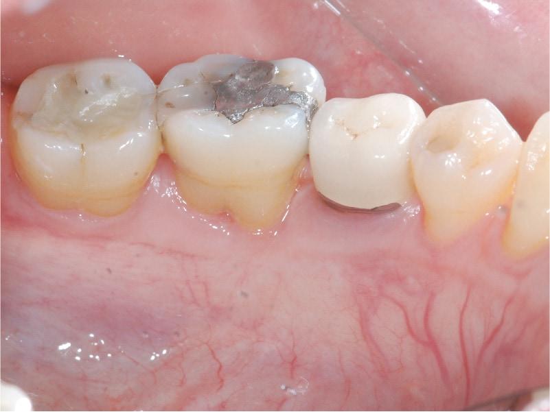牙周囊袋手術-牙周病補骨-手術後-術後追蹤一年-牙周狀況