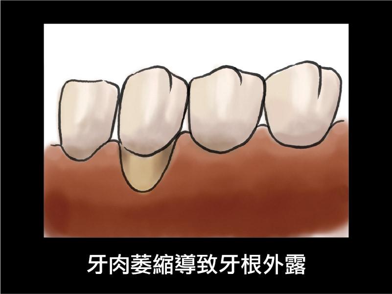 牙周囊袋-牙肉萎縮-牙根外露-葉立維醫師-桃園牙周病