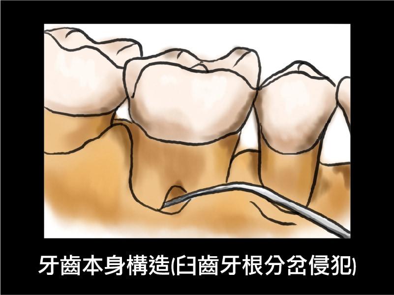 牙周囊袋-牙齒本身構造-臼齒牙根分岔侵犯-葉立維醫師-桃園牙周病