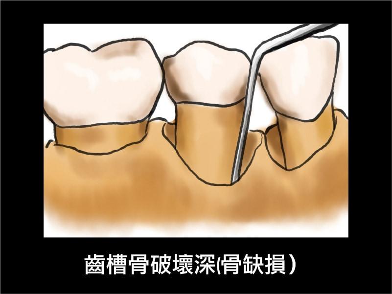 牙周囊袋-齒槽骨破壞深-骨缺損-葉立維醫師-桃園牙周病