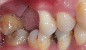 牙周病拔牙-缺牙-牙周翻瓣手術案例