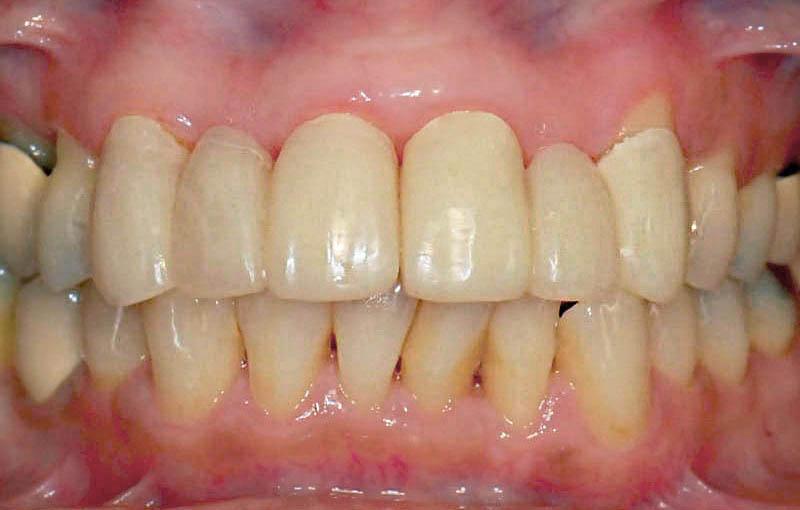 牙周病治療前-拆除門牙假牙-更換臨時假牙