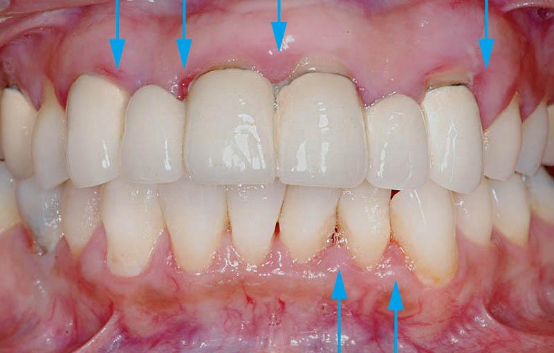 牙周病治療前-牙齦紅腫流血