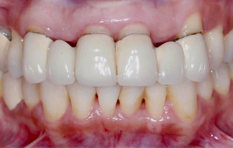 牙周病治療前-門牙舊假牙露出金屬黑邊