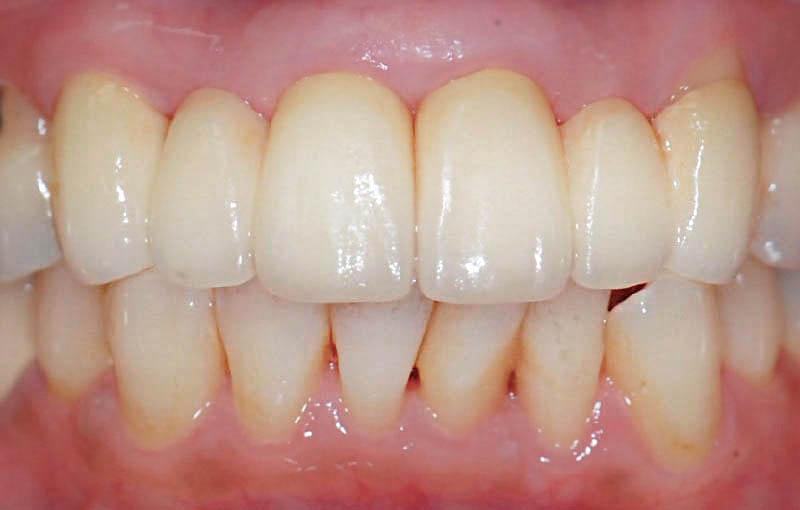 牙周病治療後-牙周再生手術-全瓷假牙