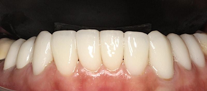 數位牙科-全瓷冠-陶瓷貼片-下顎10顆-門牙假牙-桃園牙周病