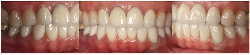 2020年-全瓷冠-陶瓷貼片-門牙假牙-前牙美觀區各角度照片-桃園牙周病
