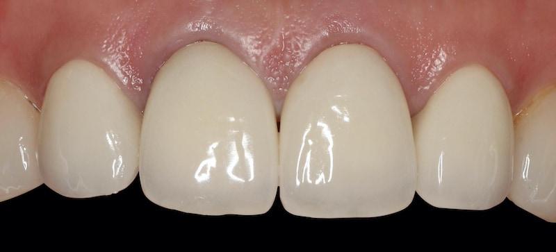 全瓷冠-安裝四年後-全瓷冠假牙-2020年-仍然美觀穩定-桃園牙周病