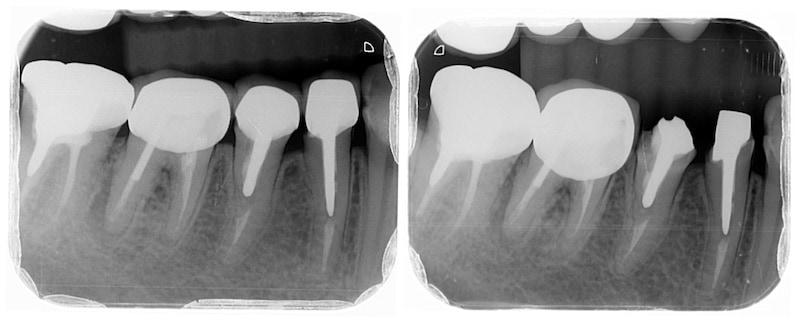 拆除舊假牙-臨時假牙-暫時修復右下小臼齒