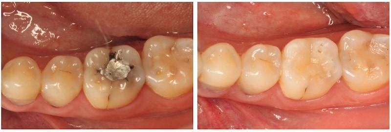 銀粉補牙-二次蛀牙-牙周病治療程序-3D齒雕-修復蛀牙