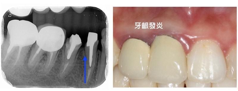 牙周病治療經驗-牙套-齒槽骨-牙冠增長術-生物寬度-牙套牙根接合過深-牙齦發炎-桃園牙周病