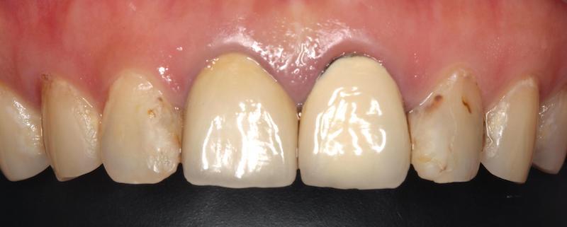 牙套不密合-蛀牙樹脂填補-二次蛀牙