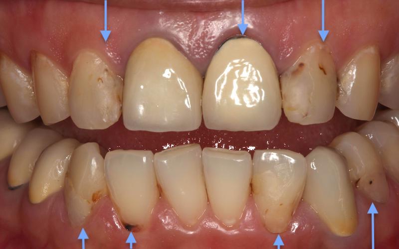 牙周病治療前-牙齒狀況-牙根外露-牙齦發炎-蛀牙