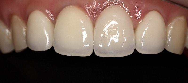 牙周病治療-門牙假牙-全瓷冠-2016年-桃園牙周病