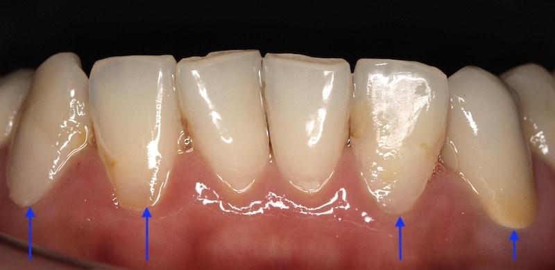 牙周病治療-2016年-樹脂補牙-傳統假牙-修復門牙蛀牙