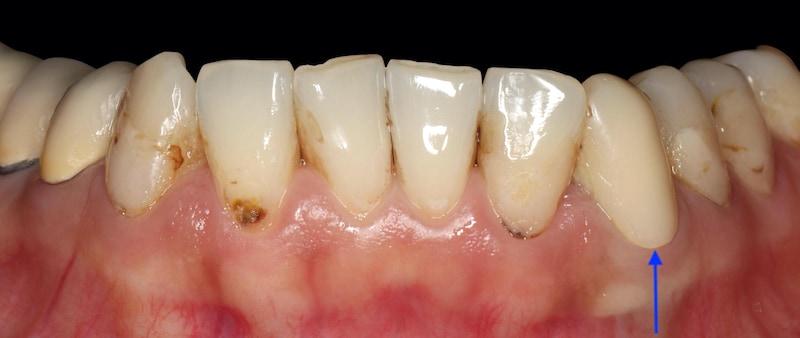 牙周病治療-2020年-門牙蛀牙-二次蛀牙-補牙變色脫落