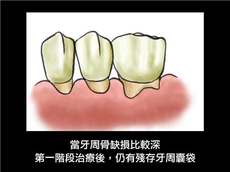 牙周病治療-牙周囊袋-牙周病手術-葉立維醫師-桃園牙周病