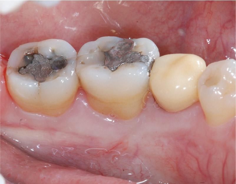 牙周病第一階段治療後-臼齒