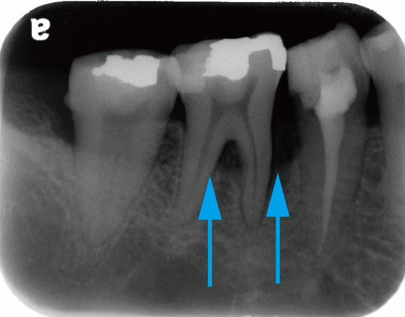 牙周病第一階段治療後-臼齒X光片