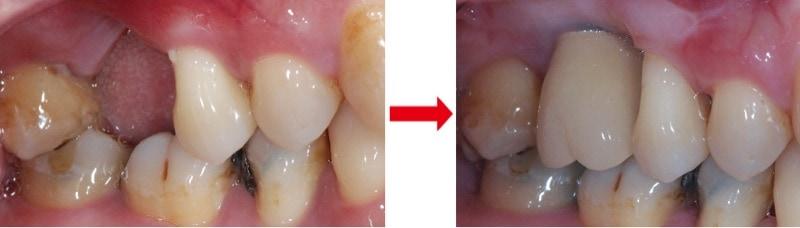 牙周翻瓣手術-植牙缺牙-十年全口牙周追蹤-葉立維醫師-桃園牙周病