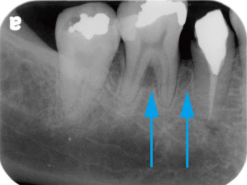 牙周翻瓣手術-牙周囊袋手術-牙周再生手術-術後X光片