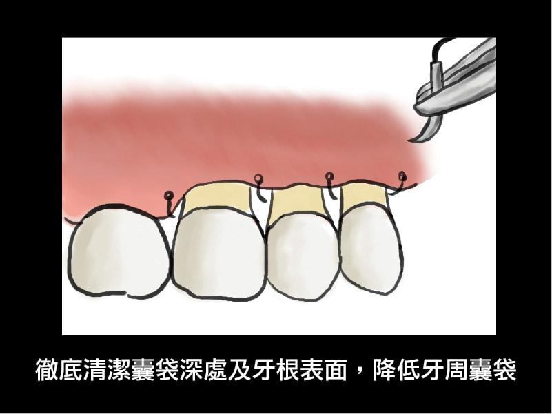 牙周翻瓣手術-牙周囊袋手術-術後-牙周囊袋恢復-葉立維醫師-桃園牙周病