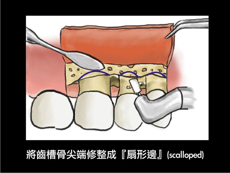 牙周翻瓣手術-牙周囊袋深度-修整齒槽骨-扇形邊-葉立維醫師-桃園牙周病
