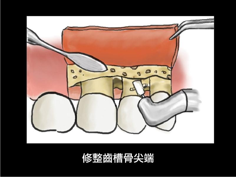 牙周翻瓣手術-牙周囊袋深度-修整齒槽骨-葉立維醫師-桃園牙周病