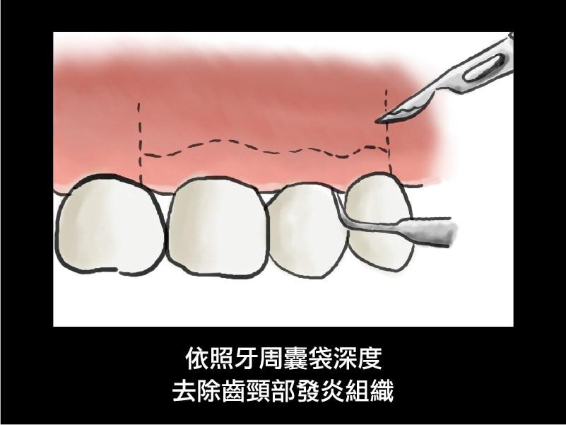 牙周翻瓣手術-牙周囊袋深度-去除發炎組織-葉立維醫師-桃園牙周病