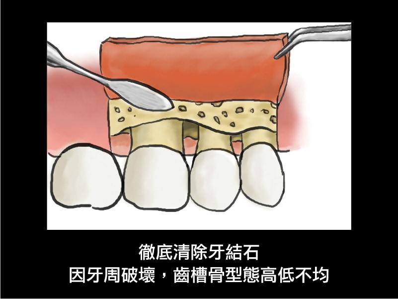 牙周翻瓣手術-牙周囊袋深度-清除牙結石-齒槽骨高低不均-葉立維醫師-桃園牙周病