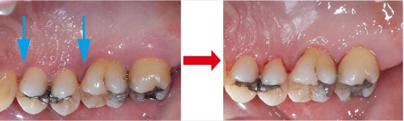 牙周翻瓣手術-牙周囊袋-牙齦紅腫發炎經牙周手術後明顯改善-葉立維醫師-桃園牙周病