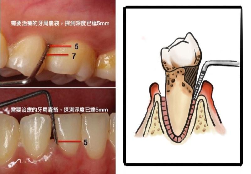 需要治療的牙周囊袋-探測深度已達5mm
