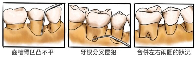 齒槽骨凹凸不平-牙根分叉侵犯-牙周手術治療