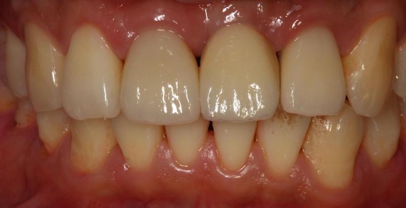 三顆全瓷牙冠-完成-上下排咬合狀況-桃園牙周病-葉立維醫師-桃園全瓷冠-沈志容醫師