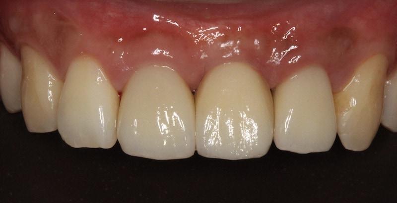 上排前牙-三顆全瓷牙冠-完成-桃園牙周病-葉立維醫師-桃園全瓷冠-沈志容醫師