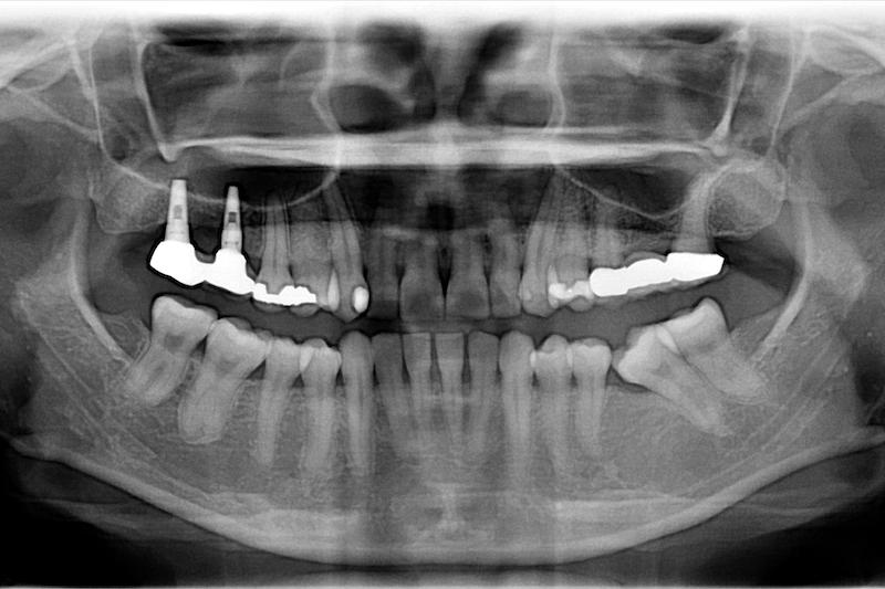 中度牙周病治療推薦: 全口牙周病/牙冠增長術/鼻竇增高術
