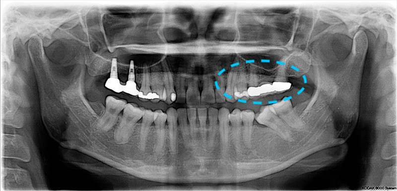 中度牙周病-環口式X光片-左上假牙不密合-左下缺牙不補