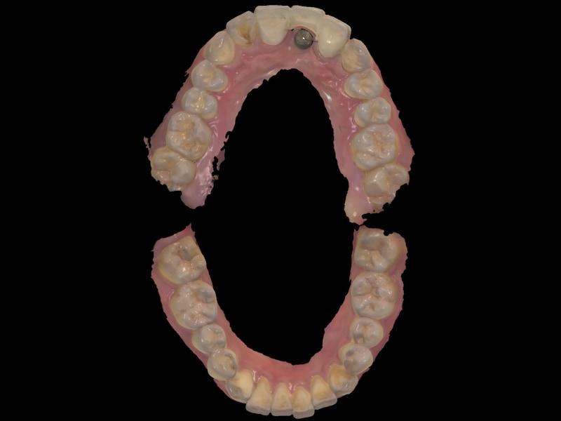 假牙製作前-數位牙科-上下顎-口腔掃描