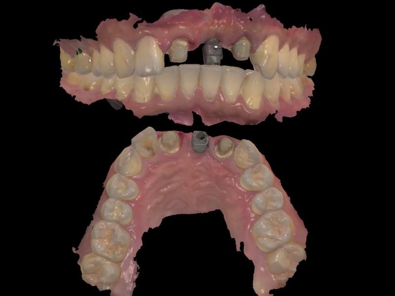 假牙製作前-數位牙科-牙齒咬合-口腔掃描