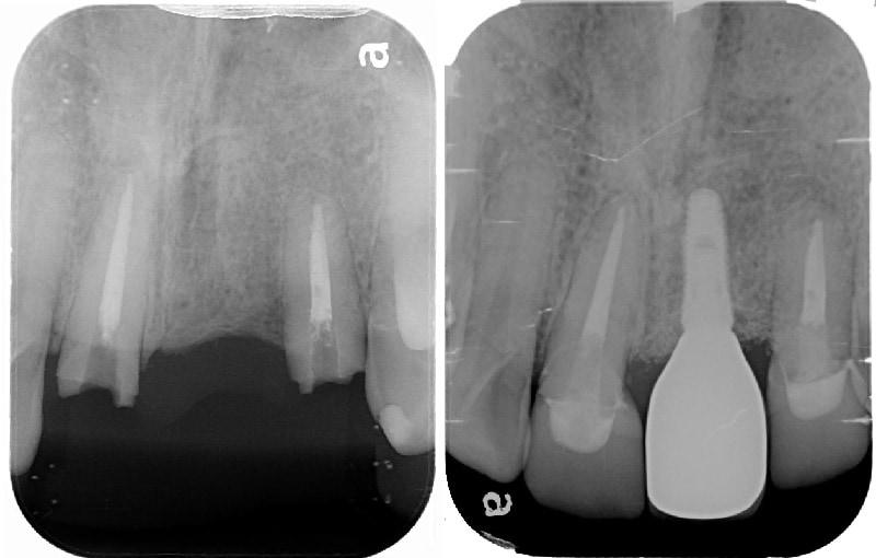 全口輕度牙周病-局部嚴重牙周病-植牙-全瓷牙冠-治療前後-X光片