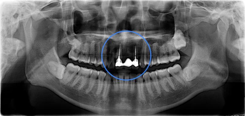 全口輕度牙周病-局部嚴重牙周病-治療前-假牙拆除前-環口式X光片