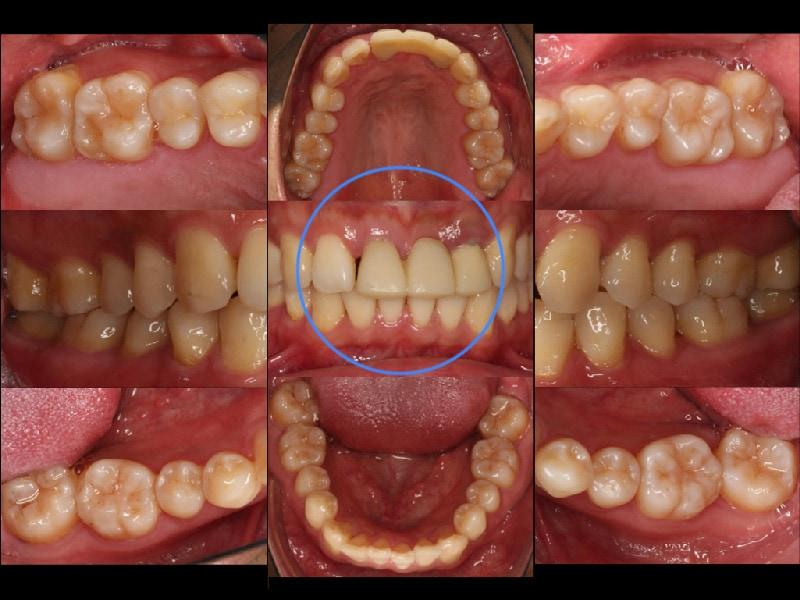 全口輕度牙周病-局部嚴重牙周病-治療前-前牙-臨時假牙
