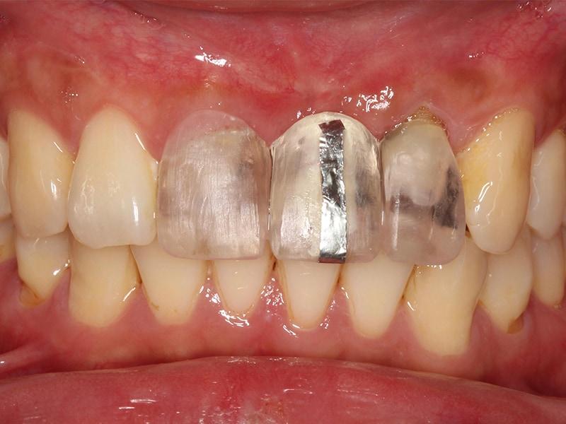 手術導板-植牙位置-模擬牙齒設計-牙齦位置