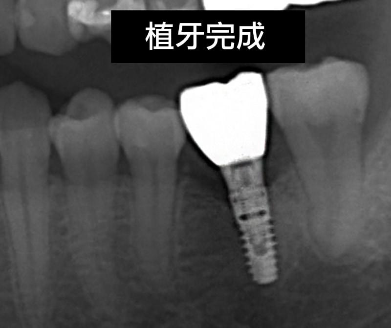 植牙完成-裝上正式假牙-X光片