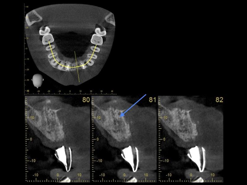 植牙補骨後-手術導板-電腦斷層影像-骨量增加