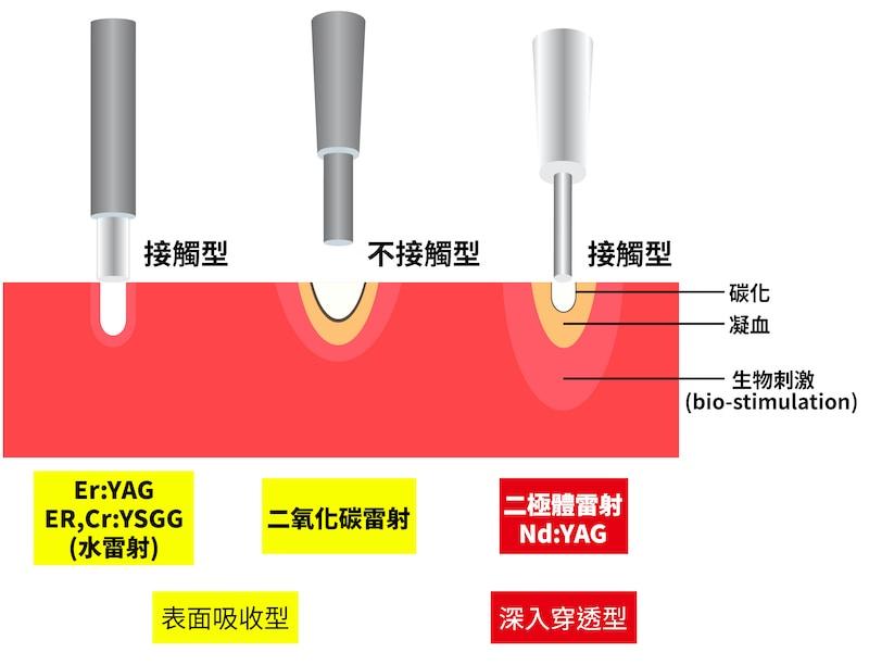 水雷射-二極體雷射-二氧化碳雷射-不同雷射特性-葉立維醫師-桃園牙周病