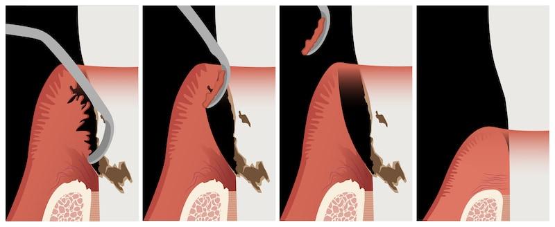 牙周刮刀-去除發炎組織-牙齦萎縮-葉立維醫師-桃園牙周病